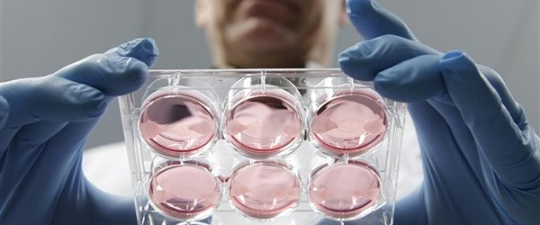 World's-first-lab-grown-meat-costs-325000-for-one-burger-Feature-Image